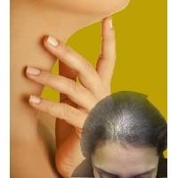 Выпадение волос при гипертиреозе